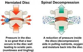 Fairfax Chiropractor | Fairfax chiropractic What is spinal decompression? |  VA |